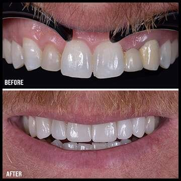 Displays the before and after of Sbenati Dentistry's world class cosmetic dentistry service.