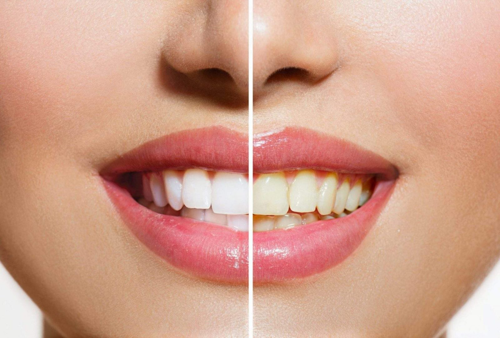 teeth whitening london ontario